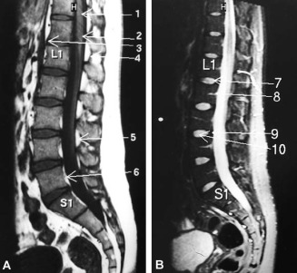 european spine journal instructions for authors