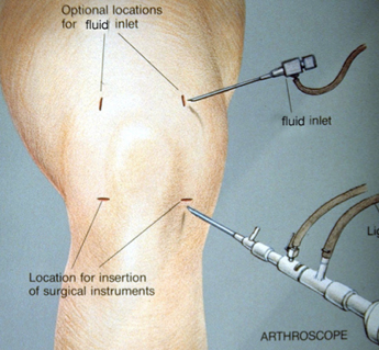acl surgery pre op instructions